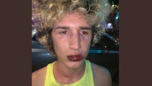 Joven denuncia que fue víctima de un ataque homofóbico en España