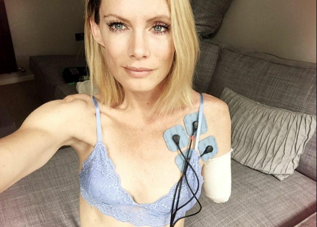 """Doble de Milla Jovovich pierde un brazo durante filmación de """"Resident Evil"""" y demanda a los productores"""