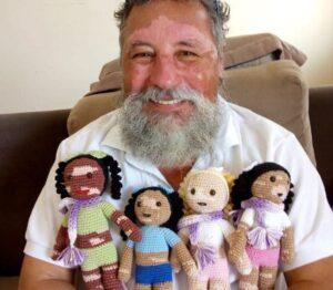 Un hombre crea muñecas con vitiligo para promover la inclusión