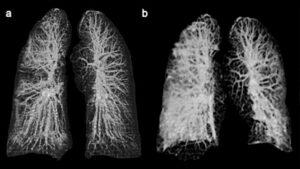 Así lucen los pulmones de dos pacientes infectados con coronavirus
