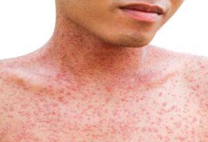 Aumentan a 117 los casos de sarampión en el país