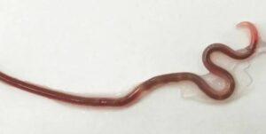Médicos extraen un gusano de la garganta de una joven que comió pescado crudo